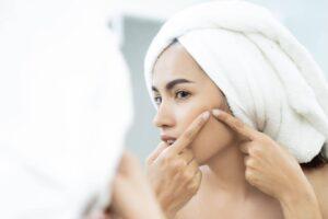 Hierbas que previenen el acné